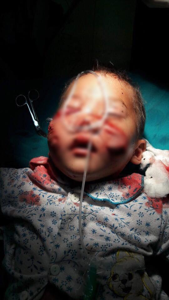 Bé 29 tháng tuổi bị chó cắn rách mặt và những quy tắc an toàn cho con bố mẹ phải nhớ - Ảnh 1.