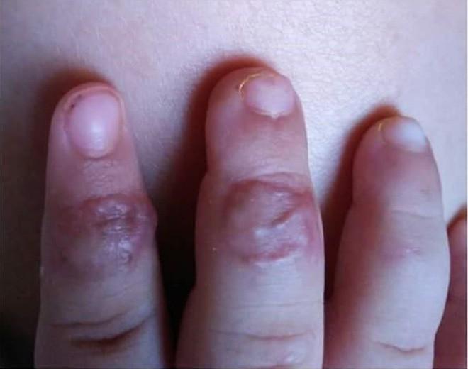 Đưa tay vào khe cửa sắt, bé trai hai tuổi ở Đồng Nai bị kẹp đứt đầu ngón tay - Ảnh 2.