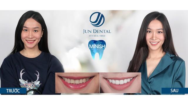 Sự thật ít người biết về mục đích ban đầu của răng sứ thẩm mỹ - Ảnh 3.