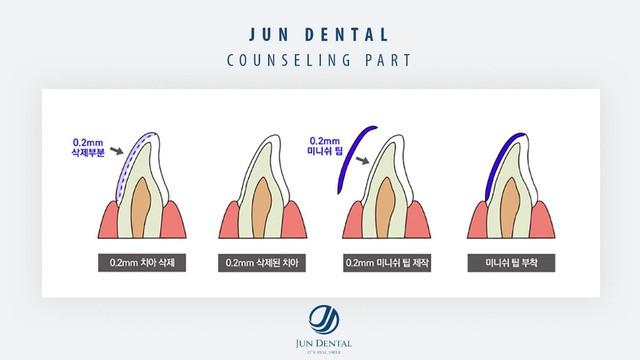 Sự thật ít người biết về mục đích ban đầu của răng sứ thẩm mỹ - Ảnh 4.