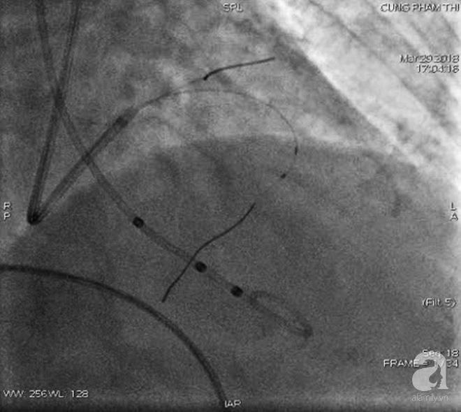Nữ bệnh nhân ở Sài Gòn bị bệnh tim hiếm gặp thoát chết nhờ... đốt cồn trong mạch máu - Ảnh 1.
