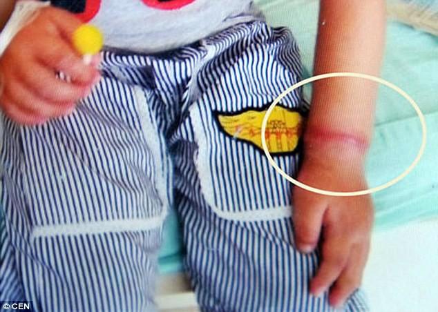 Người lớn không để ý, bé gái suýt mất một bên tay vì vật dụng nhỏ xíu nhà nào cũng có - Ảnh 6.