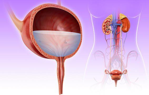 8 triệu chứng nhiễm trùng đường tiết niệu tất cả phụ nữ cần biết để xử lý kịp thời - Ảnh 4.