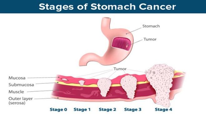 4 nhóm người có tỉ lệ bị ung thư dạ dày cao: Bác sĩ khuyên nên nhớ 4 dấu hiệu cảnh báo này - Ảnh 1.