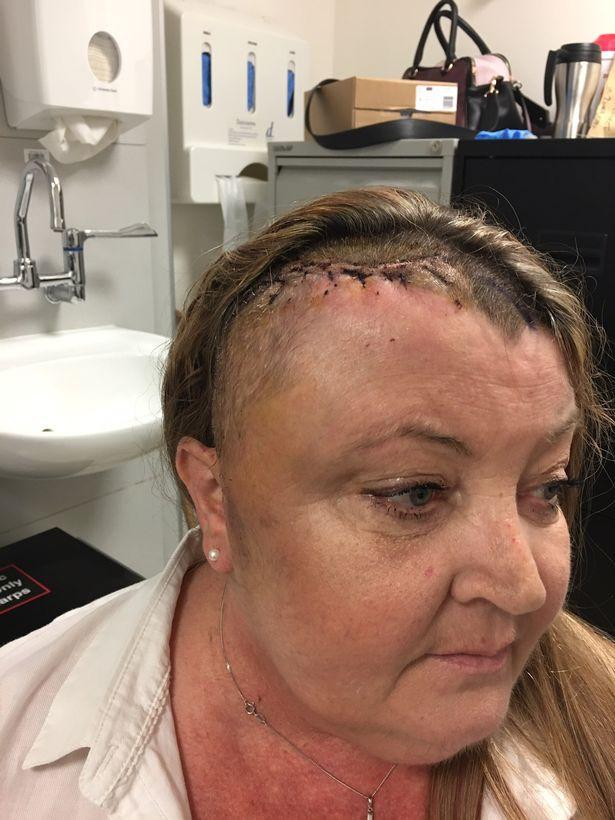 Không tin lời bác sĩ nói cô chỉ đang mãn kinh, người phụ nữ van xin để được xét nghiệm kỹ hơn thì phát hiện điều kinh khủng này - Ảnh 3.