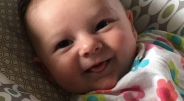 Hình ảnh em bé 7 tuần tuổi co giật, chảy máu não cho thấy vì sao luôn cần bảo vệ thóp trẻ sơ sinh thật cẩn thận - Ảnh 5.