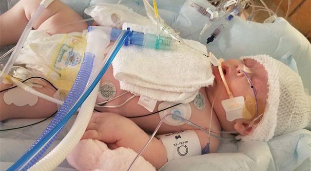 Hình ảnh em bé 7 tuần tuổi co giật, chảy máu não cho thấy vì sao luôn cần bảo vệ thóp trẻ sơ sinh thật cẩn thận - Ảnh 1.