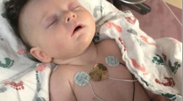 Hình ảnh em bé 7 tuần tuổi co giật, chảy máu não cho thấy vì sao luôn cần bảo vệ thóp trẻ sơ sinh thật cẩn thận - Ảnh 2.