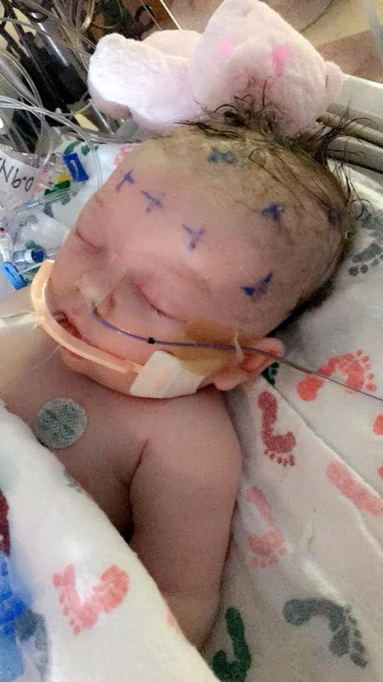 Hình ảnh em bé 7 tuần tuổi co giật, chảy máu não cho thấy vì sao luôn cần bảo vệ thóp trẻ sơ sinh thật cẩn thận - Ảnh 4.