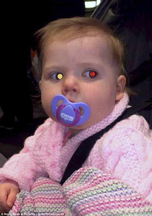 Bức ảnh cứu sống cô bé 2 tuổi khỏi căn bệnh ung thư mắt nhờ chớp được ánh sáng lạ trong mắt - Ảnh 1.