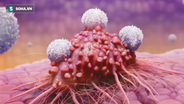Béo phì có thể dẫn đến ít nhất 6 loại ung thư, chuyên gia gợi ý cách giảm cân hiệu quả  - Ảnh 2.