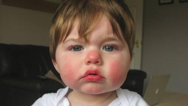 Mất con ở tuần thai thứ 19 vì bệnh phổ biến ở trẻ nhỏ, bà mẹ lên tiếng mong muốn tất cả phụ nữ mang thai nhận thức được sự nguy hiểm - Ảnh 3.