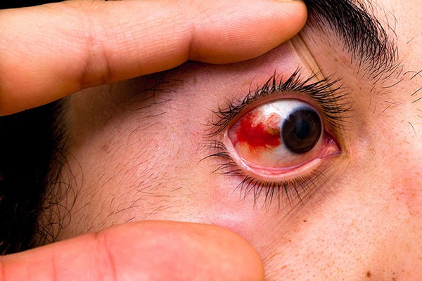 Sơ cứu đúng cách khi bị bọ xít đái vào mắt, tránh biến chứng nguy cơ mù lòa - Ảnh 5.