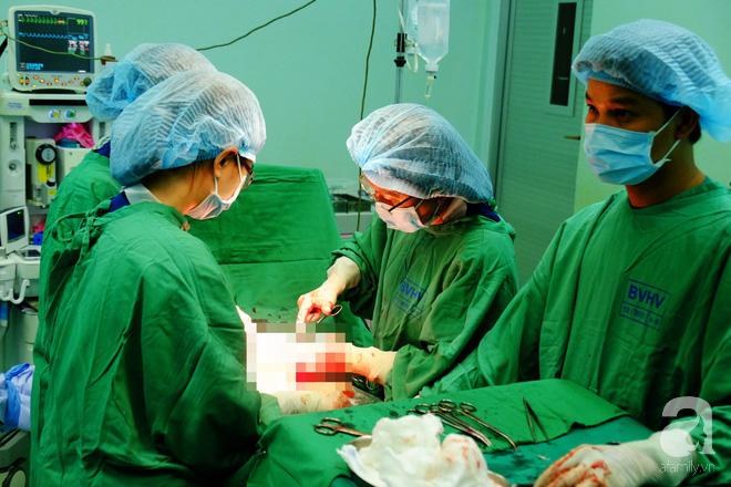 TP.HCM: Bác sĩ mổ khẩn cấp trong 8 phút cứu thai nhi bị sa dây rốn trong bụng mẹ - Ảnh 2.