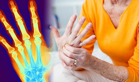 Hãy tạo cho mình những thói quen này hàng ngày để ngăn ngừa các triệu chứng đau khớp ở đầu gối, hông và bàn tay - Ảnh 1.