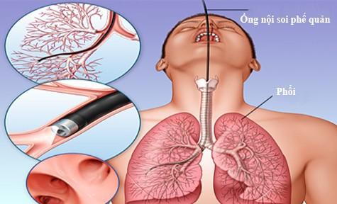 Vụ nữ bệnh nhân tử vong khi nội soi phế quản tại BV Bạch Mai: Là một sự cố đáng tiếc - Ảnh 1.
