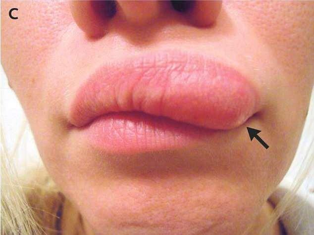 Tưởng sưng mặt bình thường, người phụ nữ này giật mình khi biết đó là do giun kí sinh bò khắp mặt và có thể nhiễm qua muỗi đốt - Ảnh 2.