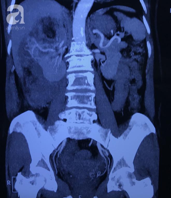 Phương pháp giúp người phụ nữ 55 tuổi giữ lại được quả thận dù đang nguy kịch vì mang khối bướu mỡ rất lớn - Ảnh 1.
