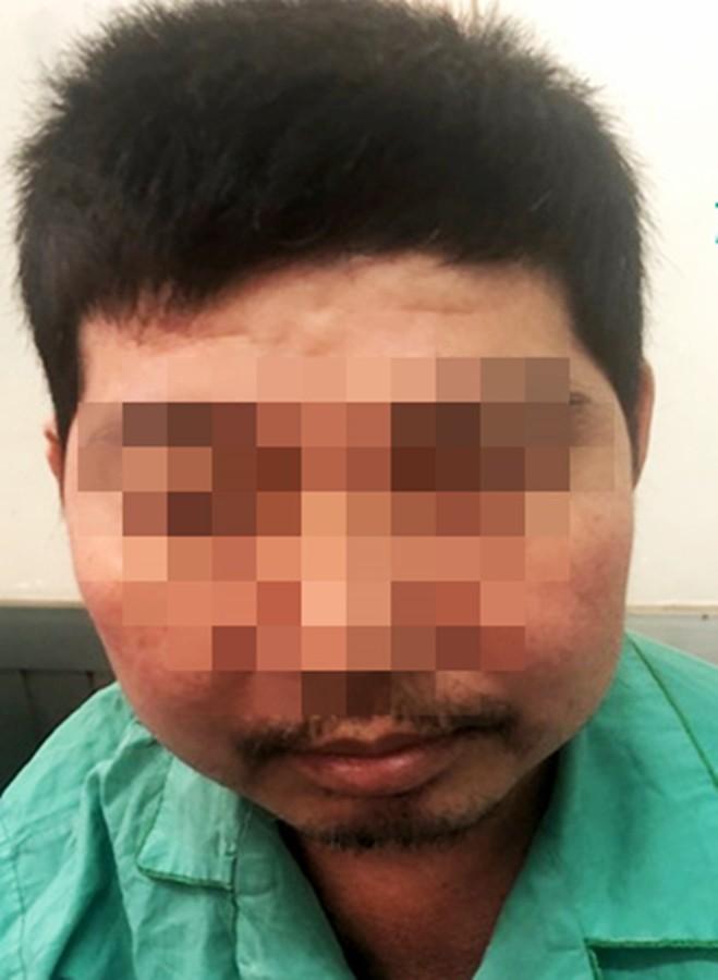 Tự điều trị khớp bằng thuốc trôi nổi, thầy lang rởm: Người bỏng đầu gối, kẻ biến dạng mặt - Ảnh 1.