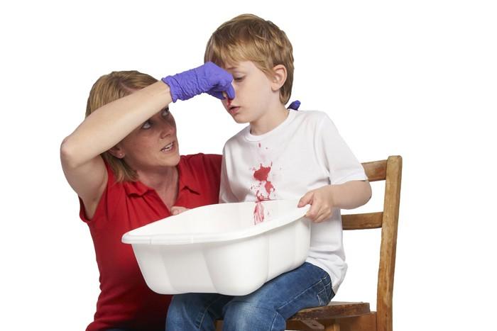 Cảnh báo: Trẻ bị chảy máu cam có thể nguy hiểm tính mạng nếu cứ ngửa đầu ra sau - Ảnh 3.
