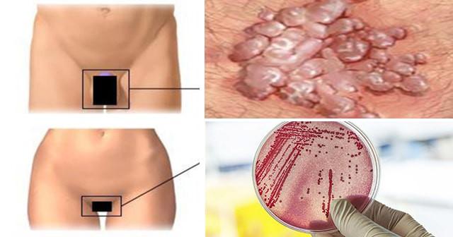 Bác sĩ người Anh cảnh báo xuất hiện thêm siêu vi khuẩn kháng kháng sinh lây qua đường tình dục - Ảnh 2.