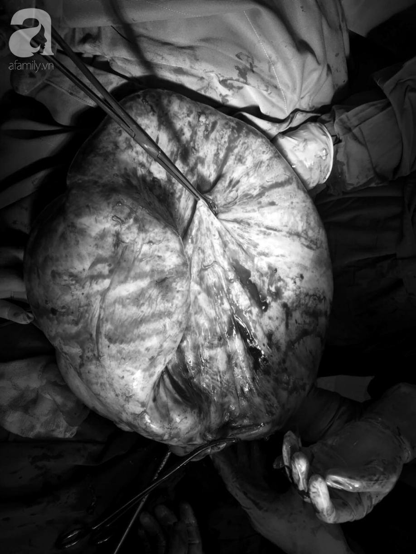 Thường xuyên ăn đêm, cô gái 20 tuổi nghĩ mình béo bụng chủ quan không đi khám suýt chết vì mang u buồng trứng khổng lồ - Ảnh 3.