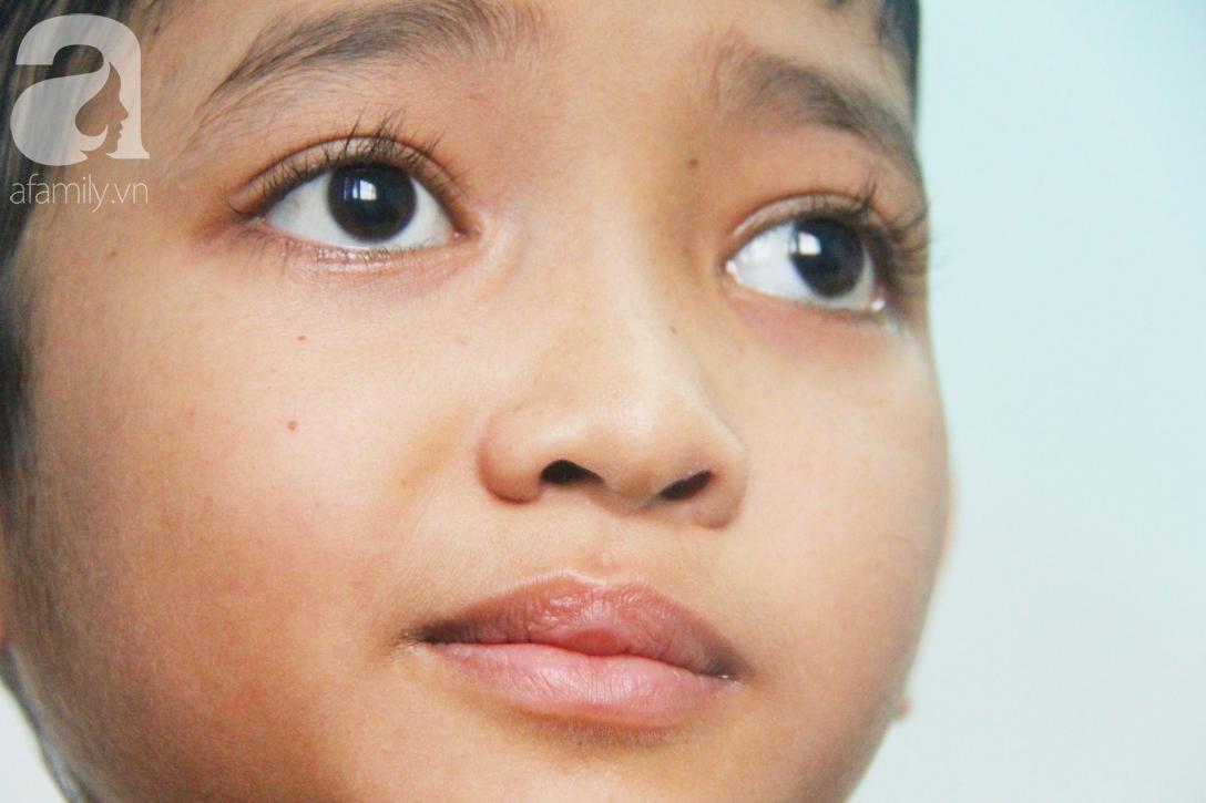 Không có tiền chữa bệnh, bé trai 10 tuổi bị u não cầu xin bố mẹ cho về nhà sống những ngày cuối cùng gia đình - Ảnh 6.