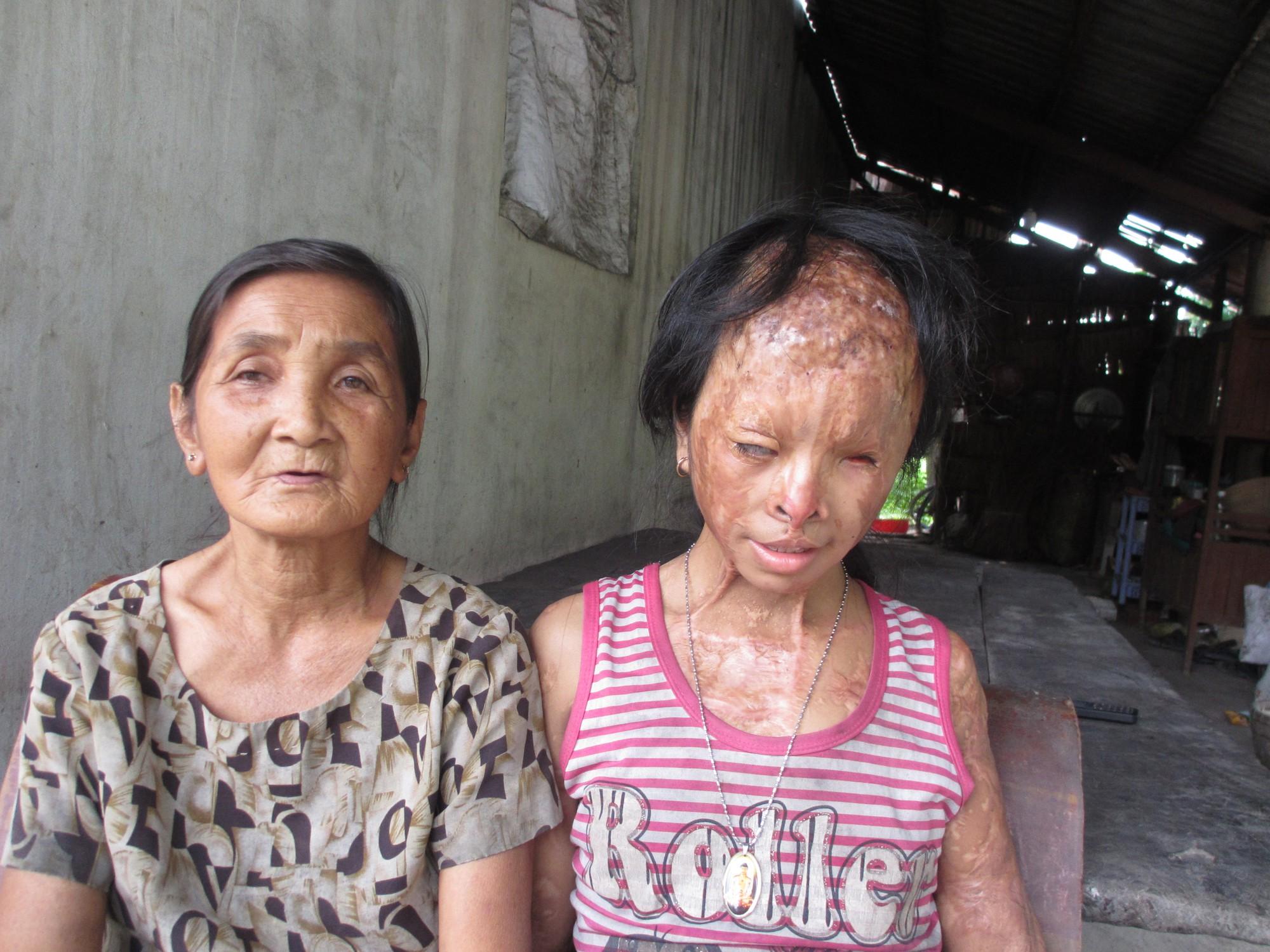 Bà nội bé gái bị tạt axit năm 7 tuổi vì mẹ giật chồng người khác: Tôi muốn xin đôi mắt của tử tù Nguyễn Hữu Tình để cứu cháu - Ảnh 1.
