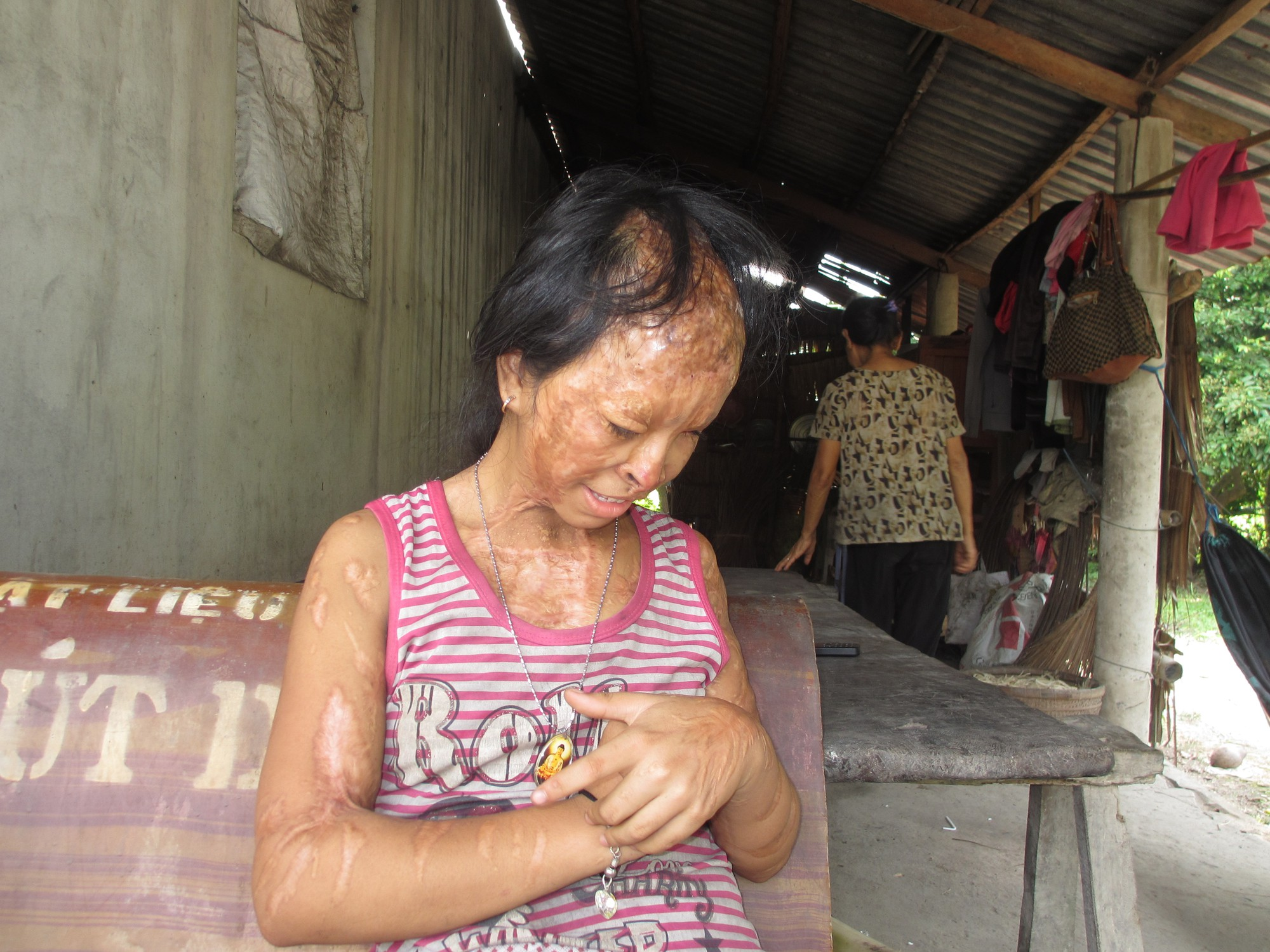Bà nội bé gái bị tạt axit năm 7 tuổi vì mẹ giật chồng người khác: Tôi muốn xin đôi mắt của tử tù Nguyễn Hữu Tình để cứu cháu - Ảnh 3.