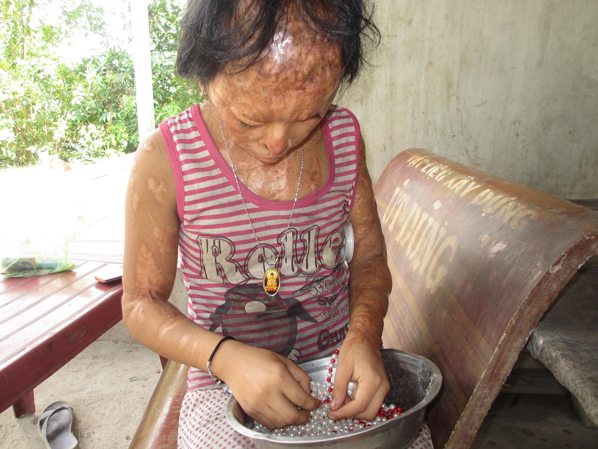 Bà nội bé gái bị tạt axit năm 7 tuổi vì mẹ giật chồng người khác: Tôi muốn xin đôi mắt của tử tù Nguyễn Hữu Tình để cứu cháu - Ảnh 2.