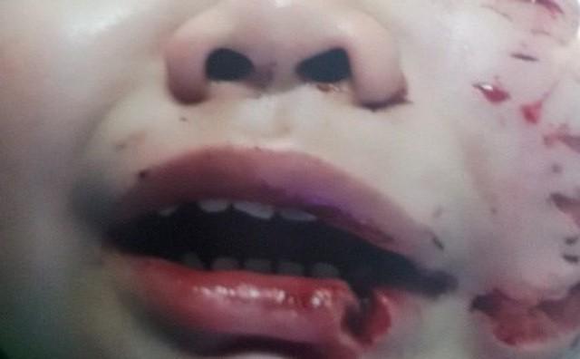 Hàng loạt trẻ bị chó cắn nát mặt, đứt khí quản, tử vong: Báo động đỏ nhiều nhà nuôi chó - Ảnh 1.