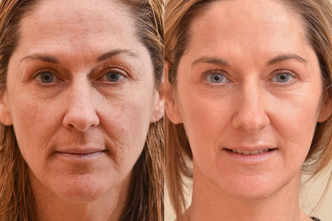 4 cách xóa nếp nhăn cho hiệu quả bất ngờ: Từ sản phẩm chăm sóc da đến nhờ cậy thủ thuật thẩm mỹ - Ảnh 7.