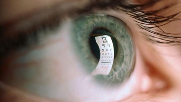 Cô gái 23 tuổi gần như bị mù vì có thói quen này trước khi đi ngủ, ai trong trường hợp như vậy cần phải cẩn trọng - Ảnh 1.