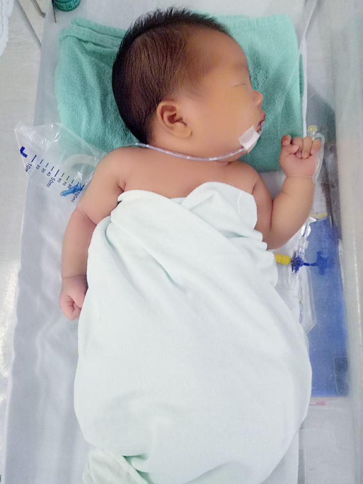 Bác sĩ hết hồn khi tiếp nhận ca tự chữa vàng da tại nhà cho trẻ sơ sinh bằng cách này - Ảnh 5.