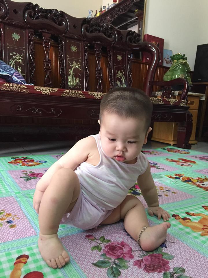 Tưởng chỉ bị đau chân bình thường, ai ngờ bé 10 tháng tuổi mắc phải căn bệnh lạ ở trẻ em - Ảnh 1.