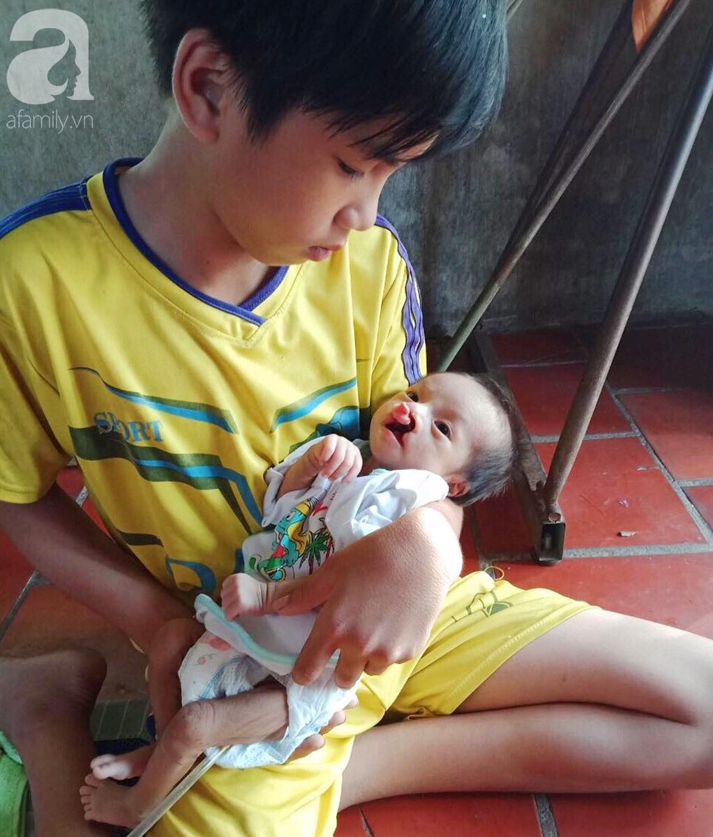 Xót cảnh bé trai 2 tháng tuổi suy dinh dưỡng, nặng chỉ 2 ký mà mẹ nghèo không đủ tiền đưa lên Sài Gòn chữa bệnh - Ảnh 11.