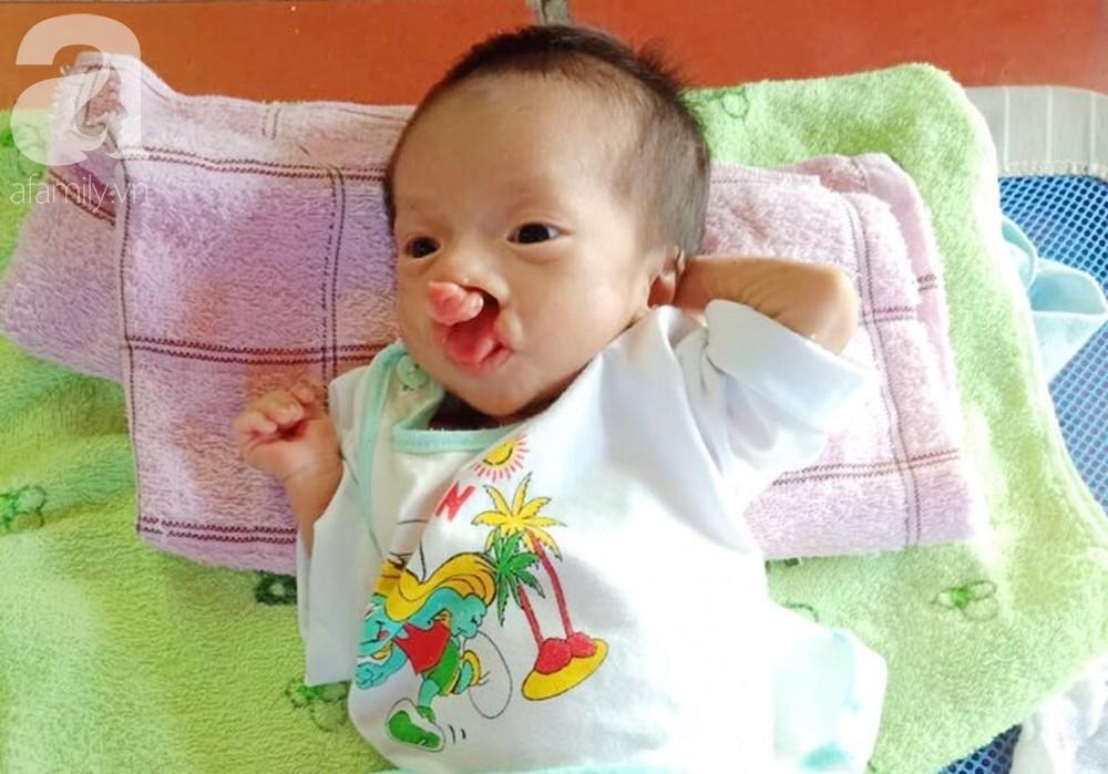 Xót cảnh bé trai 2 tháng tuổi suy dinh dưỡng, nặng chỉ 2 ký mà mẹ nghèo không đủ tiền đưa lên Sài Gòn chữa bệnh - Ảnh 5.