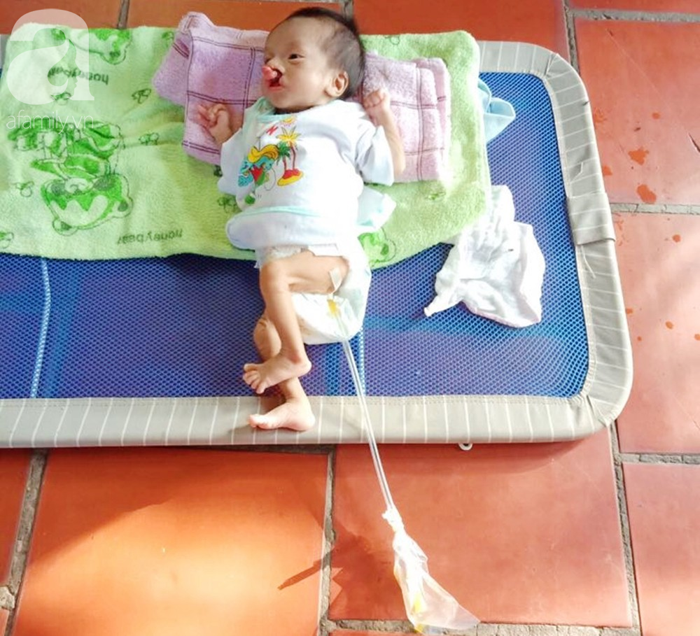 Xót cảnh bé trai 2 tháng tuổi suy dinh dưỡng, nặng chỉ 2 ký mà mẹ nghèo không đủ tiền đưa lên Sài Gòn chữa bệnh - Ảnh 10.
