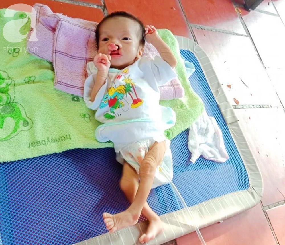 Xót cảnh bé trai 2 tháng tuổi suy dinh dưỡng, nặng chỉ 2 ký mà mẹ nghèo không đủ tiền đưa lên Sài Gòn chữa bệnh - Ảnh 3.