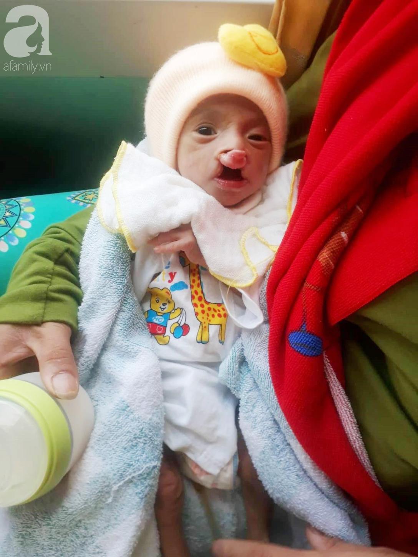 Xót cảnh bé trai 2 tháng tuổi suy dinh dưỡng, nặng chỉ 2 ký mà mẹ nghèo không đủ tiền đưa lên Sài Gòn chữa bệnh - Ảnh 1.