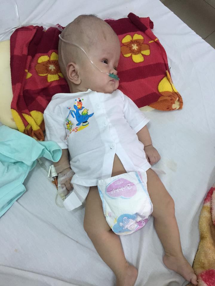 Thiếu kinh phí phẫu thuật cho con trai bị não úng thủy đang điều trị tại Singapore, người mẹ ôm con quỳ gối cầu cứu sự giúp đỡ - Ảnh 1.