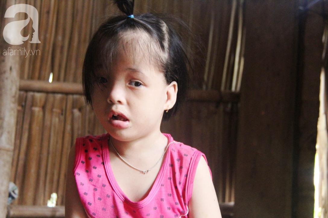 Phép màu đến với bé gái 7 tuổi bị não úng thủy, lết theo mẹ xin cơm ăn mỗi ngày mà không có tiền chữa bệnh - Ảnh 7.