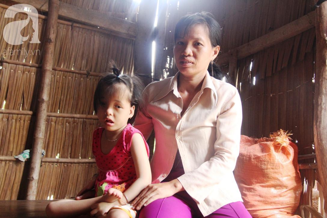 Phép màu đến với bé gái 7 tuổi bị não úng thủy, lết theo mẹ xin cơm ăn mỗi ngày mà không có tiền chữa bệnh - Ảnh 1.
