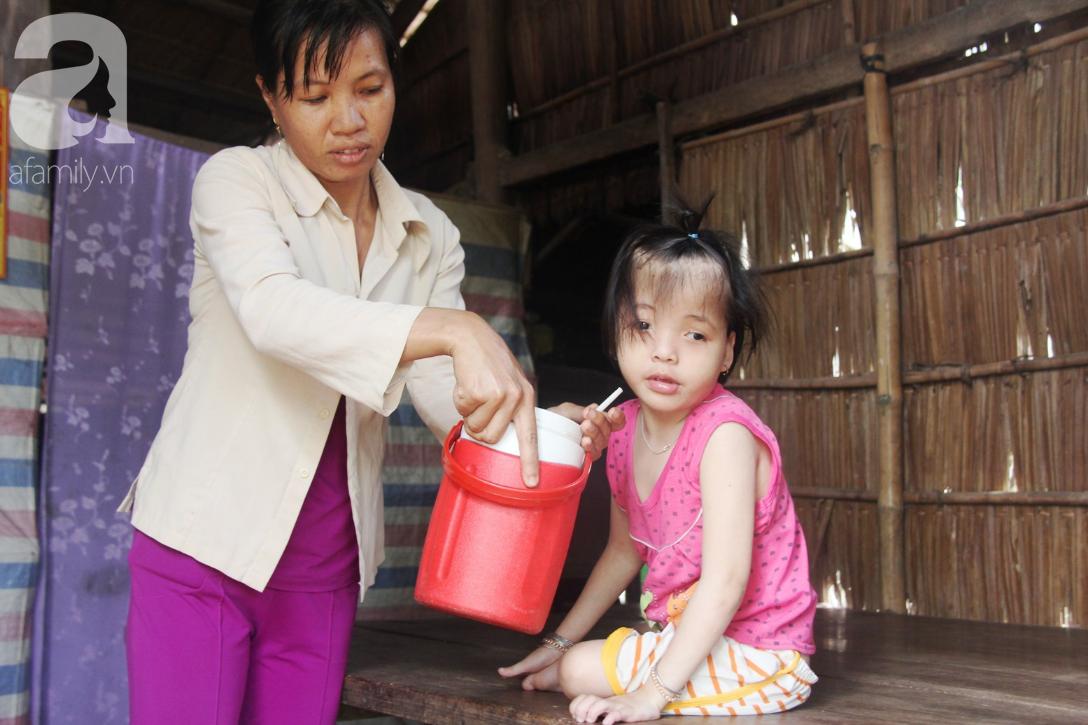 Phép màu đến với bé gái 7 tuổi bị não úng thủy, lết theo mẹ xin cơm ăn mỗi ngày mà không có tiền chữa bệnh - Ảnh 5.
