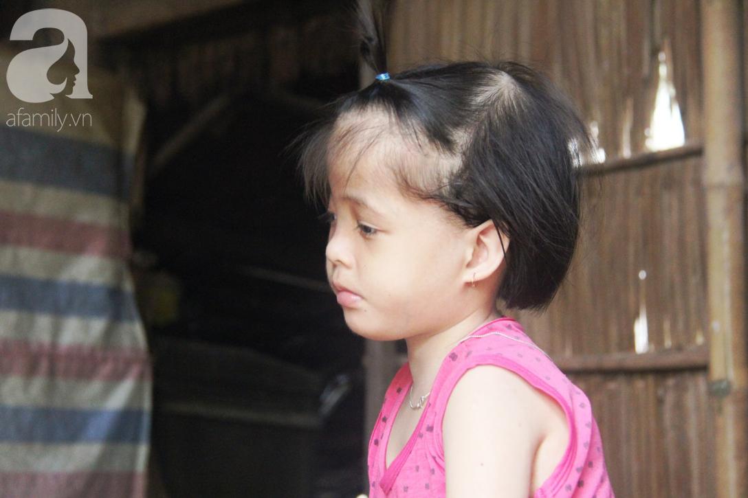 Phép màu đến với bé gái 7 tuổi bị não úng thủy, lết theo mẹ xin cơm ăn mỗi ngày mà không có tiền chữa bệnh - Ảnh 4.