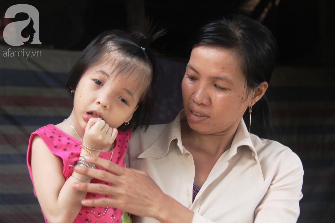Phép màu đến với bé gái 7 tuổi bị não úng thủy, lết theo mẹ xin cơm ăn mỗi ngày mà không có tiền chữa bệnh - Ảnh 8.