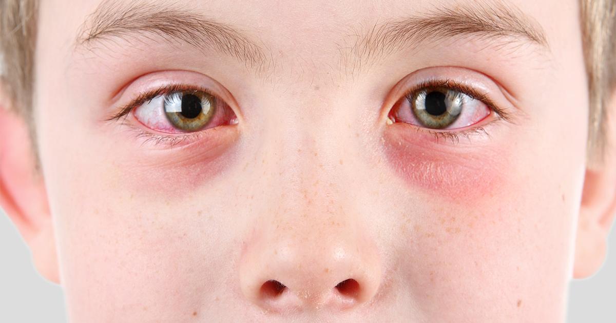 Tới gặp bác sĩ ngay nếu bạn bị đau mắt kèm theo những triệu chứng này - Ảnh 1.