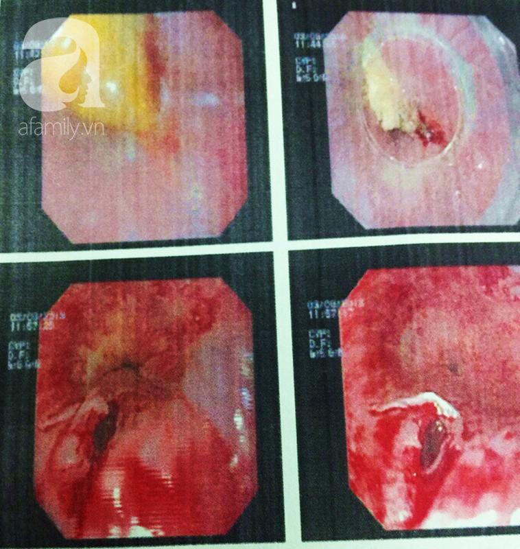 TP.HCM: Mắng con trong lúc ăn phở gà, mẹ bị hóc xương thủng thực quản - Ảnh 2.