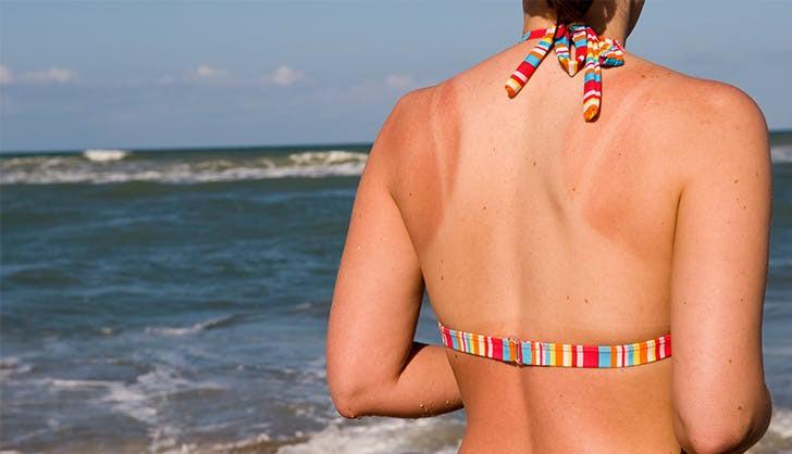 """Những """"vết hằn dây áo"""" do cháy nắng sẽ biến mất nhanh hơn với 5 tips đơn giản này - Ảnh 5."""