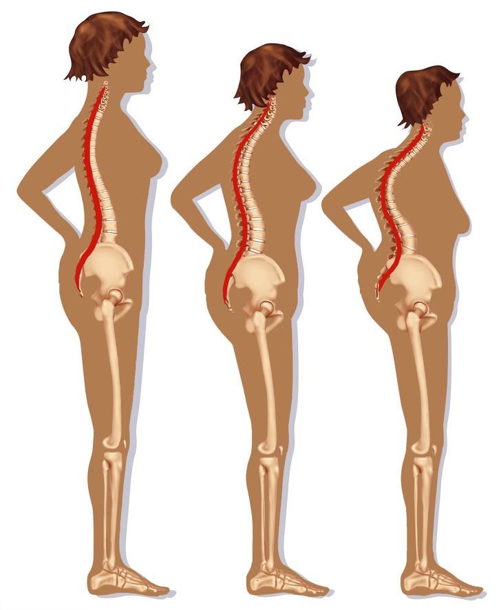 7 thói quen hàng ngày phá hủy cột sống của bạn dẫn đến những cơn đau lưng trầm trọng - Ảnh 2.